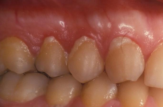 Holistische parodontologie - plaque op tanden