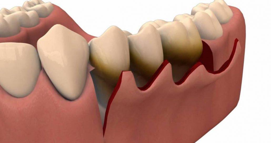 Holstische parodontologie - flapoperatie