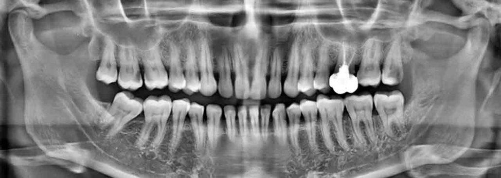 Holistische parodontologie - RX-foto